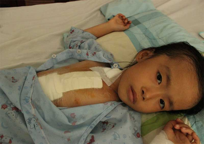 My Phuong two days after surgery