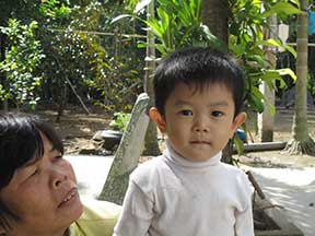 Manh Quan with his grandmother before surgery.